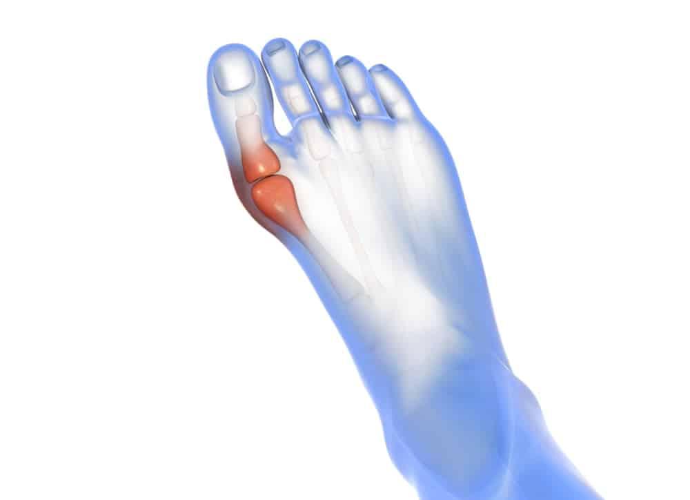 Hallux Valgus Schuhe