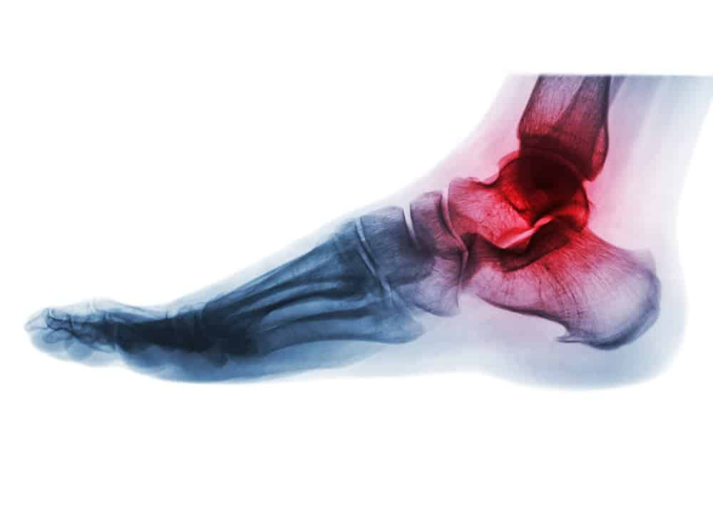 Arthrose Schuh